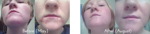 Hope-LaVelle-before-and-after